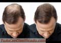 Plasma la caída y crecimiento del pelo-ANALUSPA