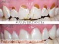 odontologia-estetica-y-restaurativa-2.jpg