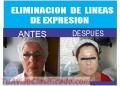 ¡Eliminación de Líneas de Expresión en Surco!