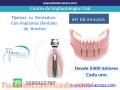 Implantes Dentales desde 300 dolares