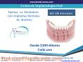 implantes-dentales-1.jpg