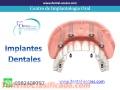 implantes-dentales-2.jpg