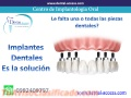 implantes-dentales-3.jpg