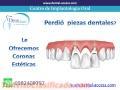 Tratamientos de Endodoncia