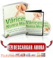 varices-nunca-mas-2.jpg