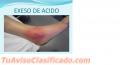 Artritis como prevenir y controlar