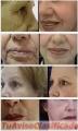 Rejuevenecimiento facial PRP