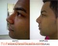 Corecciones de labios, nariz, menton sin cirugia en Ciudad de Panamá Panamá